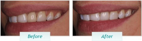 Teeth Whitening – BNA Image – 03