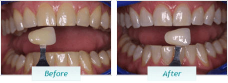 Teeth Whitening – BNA Image – 04