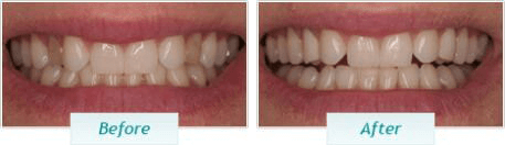 Smile Gallery San Francisco - Before and After Dental Photos