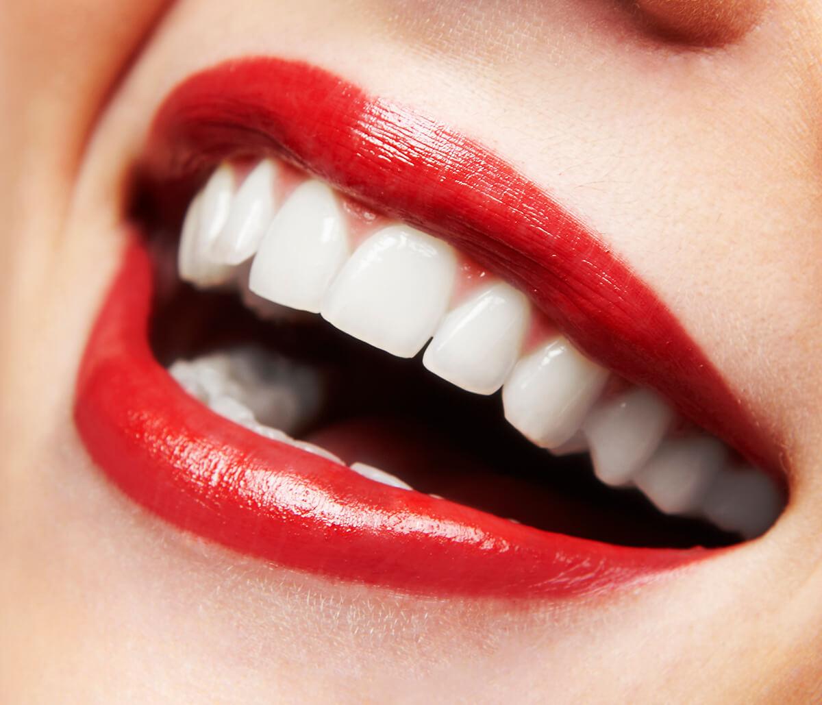Teeth Whitening Tips in San Francisco Area